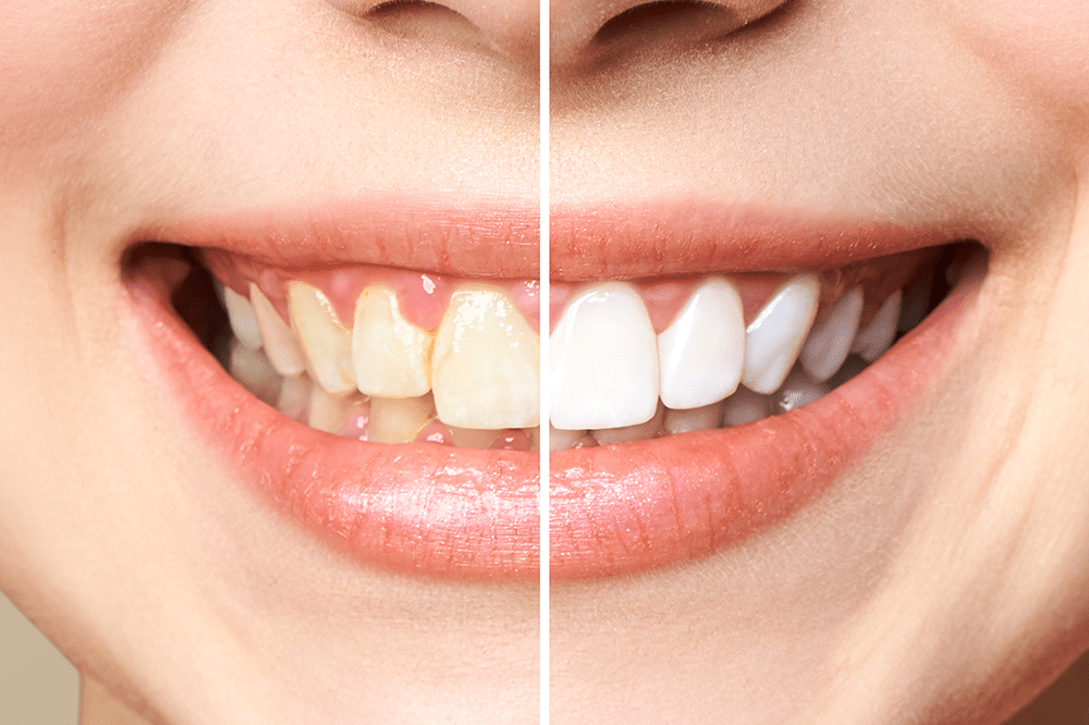 , Teeth Whitening